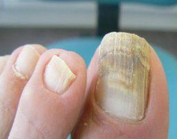 hongos de las uñas de los pies