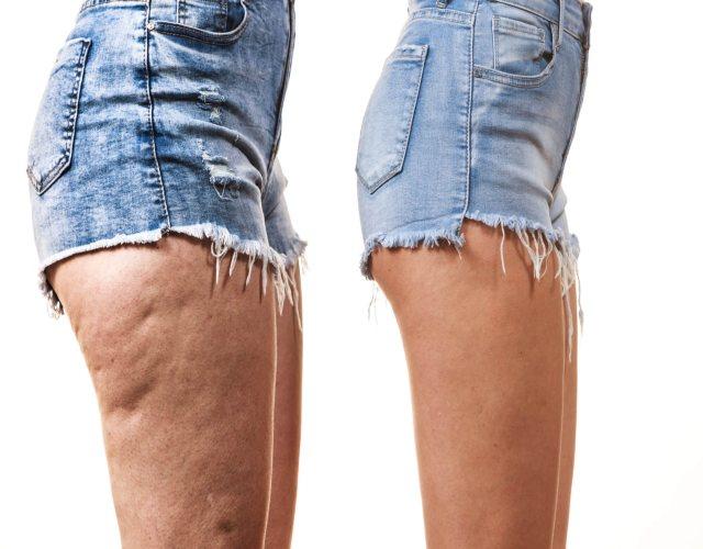 Cómo quitar la celulitis de las piernas