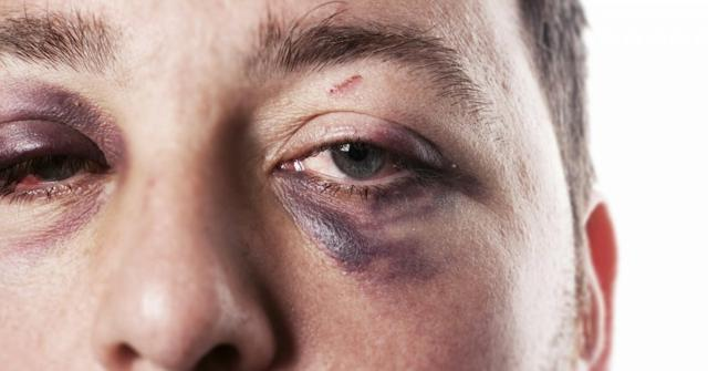 un ojo morado