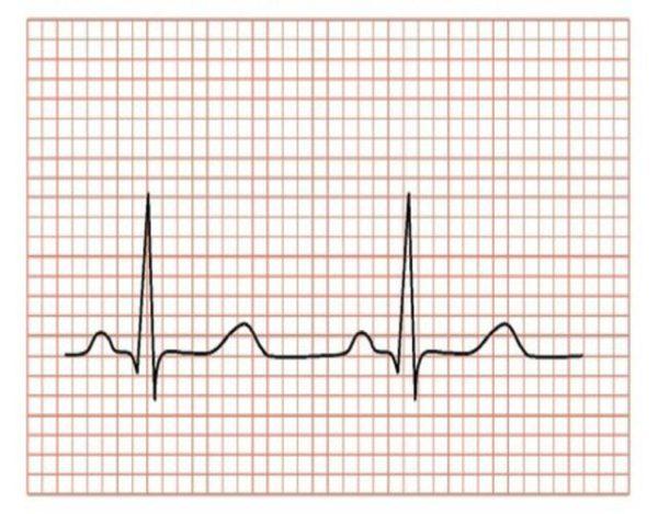 interpretar un electrocardiograma
