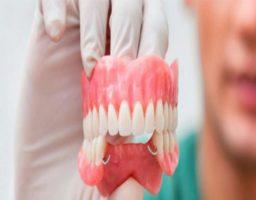 quitar el pegamento dental